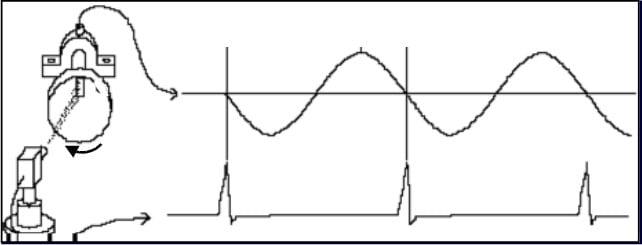 Figura 6.2 - Medição sincronizada com a rotação da máquina num analisador de vibrações